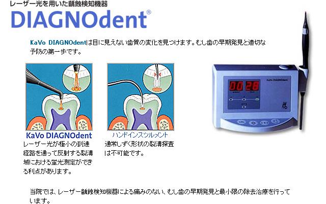 虫歯を探知するダイアグノデントの機器